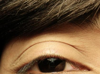 Komórki macierzyste mogą pomóc niewidomym