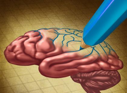 Komu grozi udar mózgu?