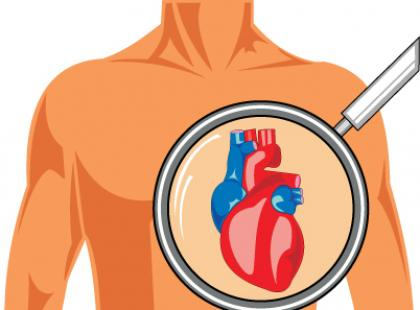 Koronarografia - okno na serce