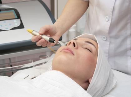 Kriopeeling, czyli ciekły azot na ratunek skórze trądzikowej