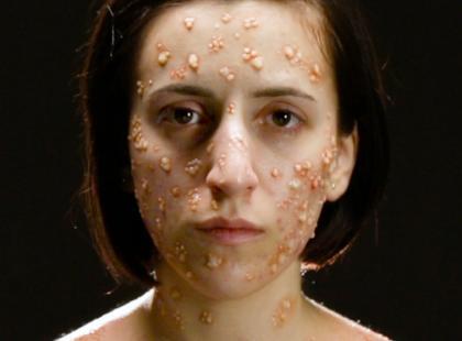 Krosty, wrzody, martwica kończyn… Tak choroby zakaźne zmieniają wygląd człowieka