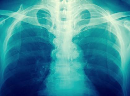 Kto powinien poddać się RTG klatki piersiowej?