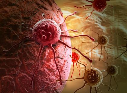 Kwas foliowy - biomarker do rozpoznawania nowotworów?