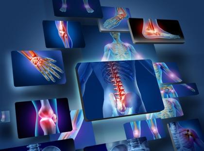 Kwas hialuronowy w leczeniu choroby zwyrodnieniowej stawów