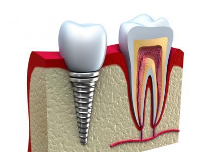 Leczenie implantologiczne – w Polsce czy za granicą?
