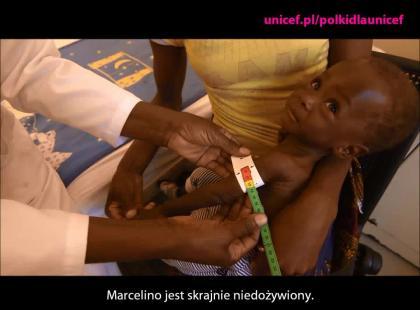 Marcelino, skrajnie niedożywiony chłopiec, potrzebuje twojej pomocy!