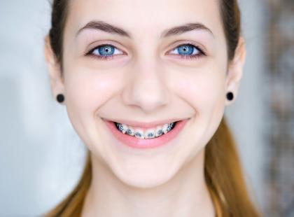 Masz już dość swoich krzywych zębów? Bierzemy pod lupę aparaty ortodontyczne: ich zalety, wady, ceny i… czy refunduje je NFZ!
