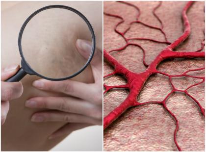 Masz pajączki, żylaki, obrzęki? Te substancje pomogą ci wzmocnić żyły i tętnice