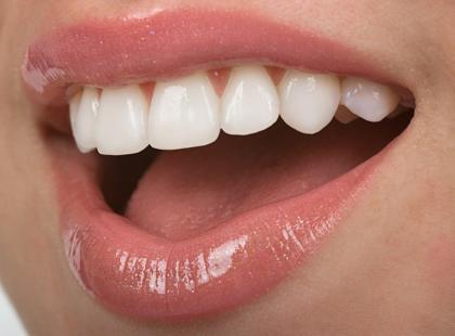 Moda na białe zęby niczym u gwiazdy Hollywood