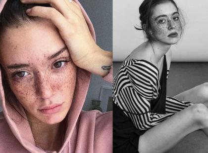 Modelka o nietypowej urodzie podbija świat mody. Ze swoich charakterystycznych piegów zrobiła atut