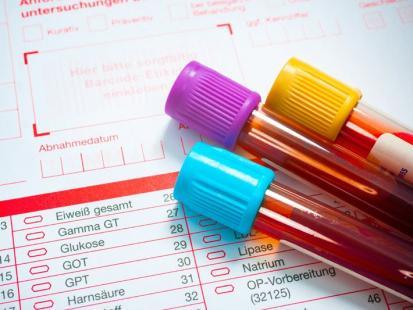 Morfologia krwi - jak odczytać wyniki badań krwi? Opisujemy aż 21 parametrów!