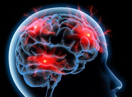 Do udaru może dojść w dwóch sytuacjach: gdy pęknie naczynie mózgowe lub dojdzie do zamknięcia tętnicy mózgowej przez zator./ fot. Fotolia