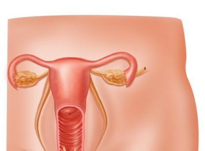 Na czym polega leczenie raka jajnika?