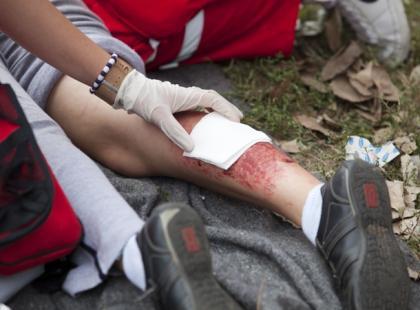 Na czym polega leczenie ran skóry?