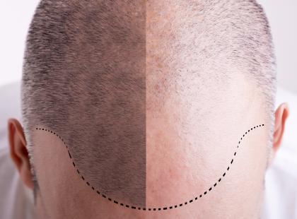 Na czym polega mezoterapia igłowa skóry głowy?