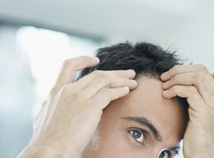 Na czym polega transplantacja włosów?