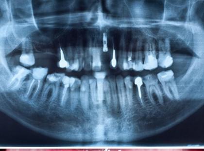 Na czym polega wszczepianie implantów w przypadku braków kostnych?