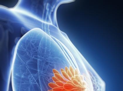 Na czym polega zaawansowany rak piersi?