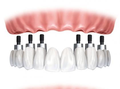 Na czym polega zabieg implantacji zęba?