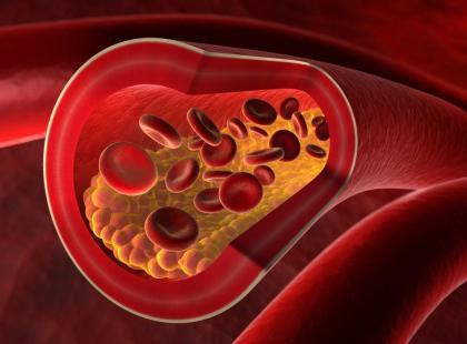 Nadmiar cholesterolu to prosta droga do miażdżycy! Jak obniżyć jego poziom?