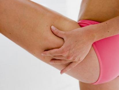 Najskuteczniejsze sposoby walki z cellulitem