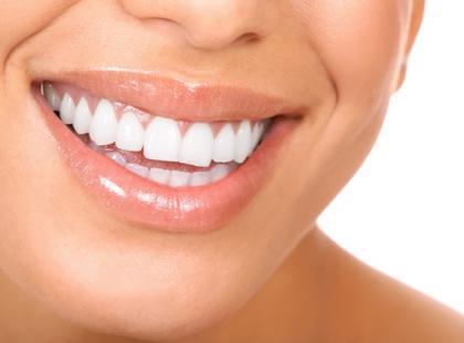 Nici dentystyczne służą do oczyszczania przestrzeni międzyzębowych z bakterii i resztek pokarmu, których nie udało się usunąć przy użyciu szczoteczki/fot. Fotolia