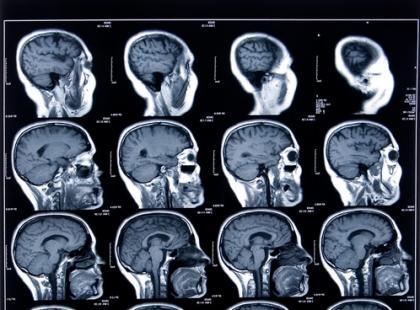Niezwykłe przypadki (braku) pamięci