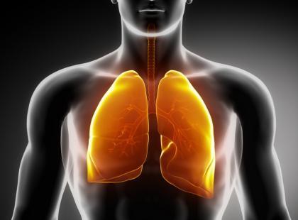 Nowa możliwość leczenia raka płuca – terapia spersonalizowana