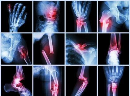 Nowoczesna ortopedia – jak leczy urazy i kontuzje?