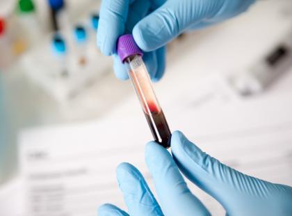 O czym mówi wartość MCHC? Sprawdź, jak interpretować wyniki tego parametru morfologii krwi!
