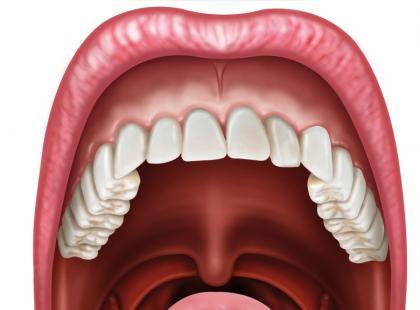 O jakich chorobach świadczy nalot na języku?