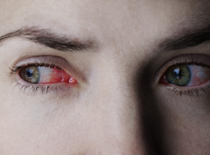 Objawy tej choroby oczu są długo tak słabe, że bywają niezauważone. Z czasem powoduje ona utratę wzroku