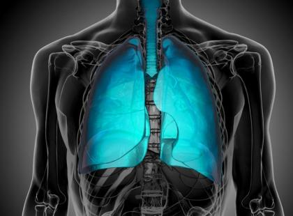 Od objawów do leczenia – jak postępuje się w przypadku raka płuc?