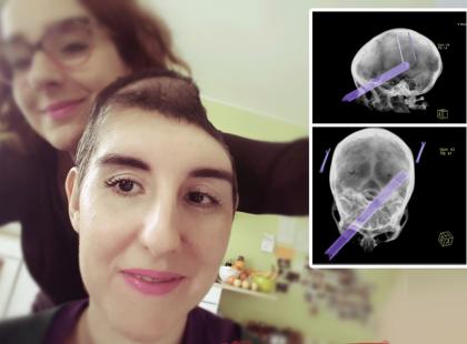 Okrutny wypadek zabrał jej zdrowie i 40 % czaszki, a dzień urodzin stał się dniem tragedii. Możesz jej pomóc, ale masz mało czasu