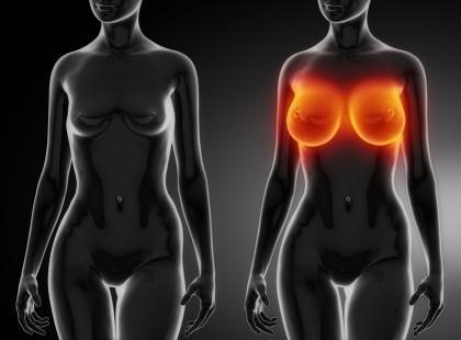 Operacje plastyczne: powiększanie i zmniejszanie piersi