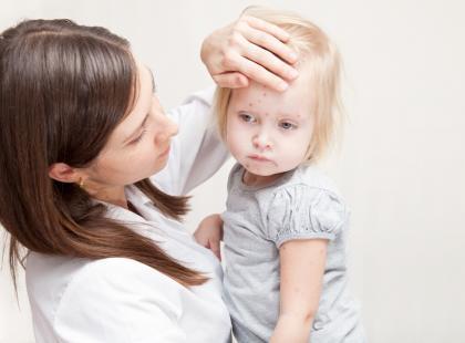 Ospa – nie każde dziecko musi zachorować