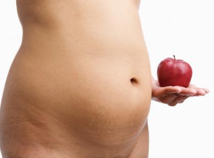 Otyłość typu jabłko