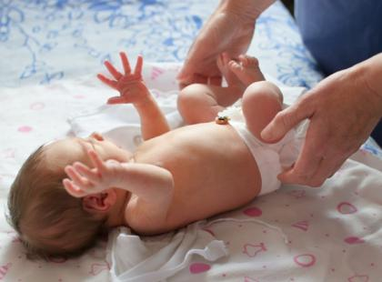 Pieluszkowe zapalenie skóry – jak pomóc dziecku?