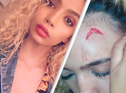 """Pierwsza dama brutalnie zaatakowała modelkę! """"14 szwów, liczne obrażenia od przedłużacza"""""""