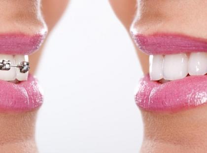 Po co zakładać aparat ortodontyczny na proste zęby?