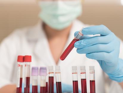 Podejrzewasz anemię? Zwróć uwagę na te parametry morfologii krwi!