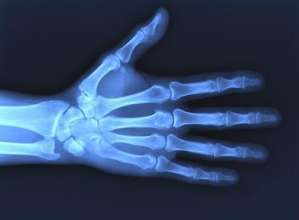 Polacy niewiele wiedzą na temat promieniowania rentgenowskiego