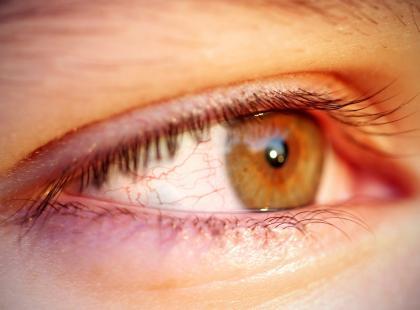 Półpasiec oczny - wyjątkowo groźny przeciwnik