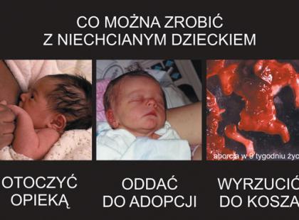 Popatrz na aborcję