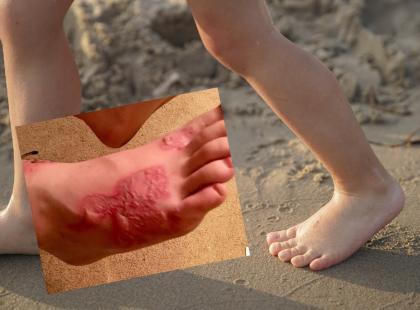 Popularna zabawa na plaży zakończona infekcją! Matka ostrzega innych rodziców