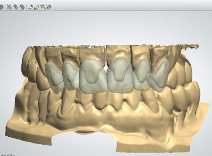 Protezy i implanty zębowe – najbardziej nowoczesne technologie protetyczne (galeria)