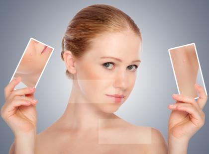 Przebarwienia – jak im zapobiegać?
