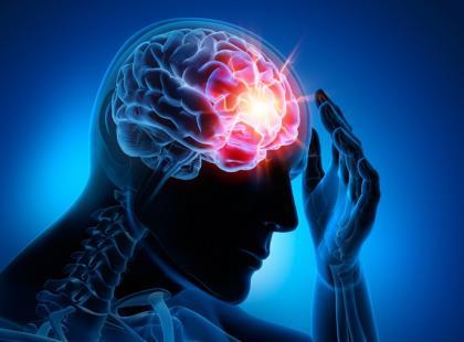 Przemijające niedokrwienie mózgu – czym jest mały udar? [wywiad]