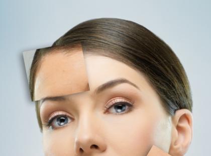 Przeszczepy skóry po oparzeniach