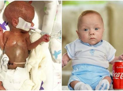 Przeżył, chociaż lekarze nie dawali mu szans. W momencie narodzin był tak mały, że ważył tyle, co puszka Coca-coli!